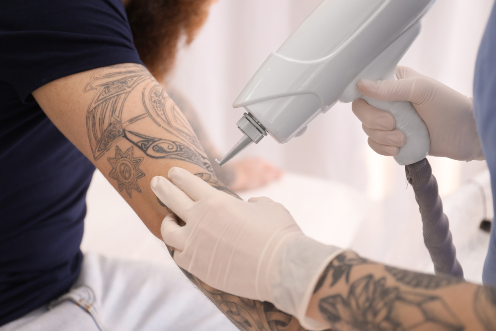 Tattoo Removal Business